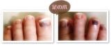 足の爪左1119
