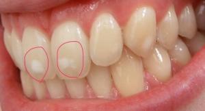 フッ素 歯