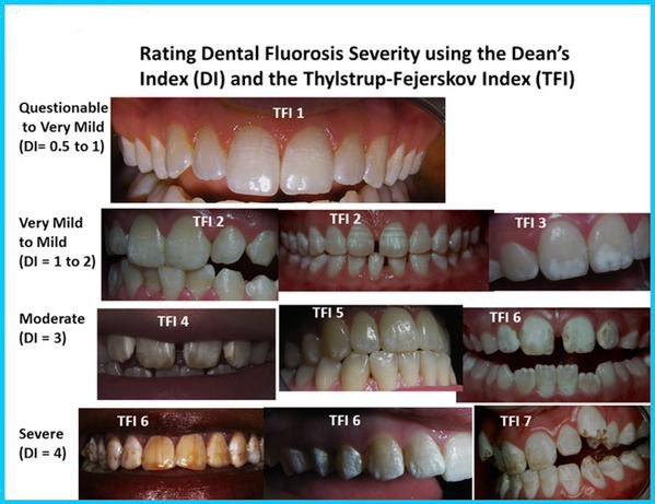 フッ素 歯2
